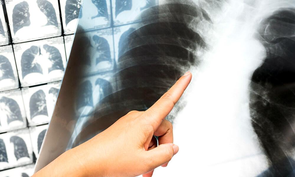 Detección de COVID-19 y enfermedades pulmonares con un algoritmo inteligente de Deep Learning